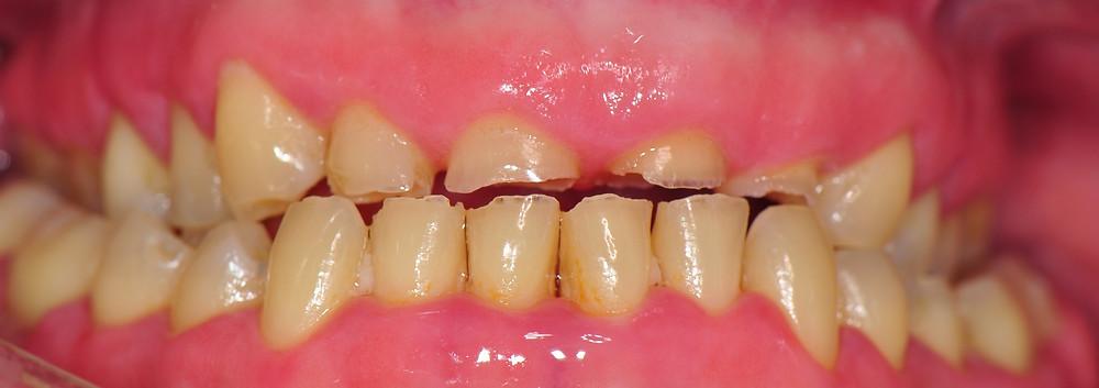 Atrición dentaria