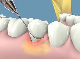 Clinica, dental, dentista, odontologica, las condes, santiago, beauvisage, odontologia, dientes, periodoncia, periodoncista, encia, recesion gingival