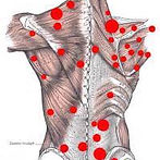 Trigger point therapy used in remedial massage located in Kalgoorlie Boulder