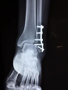 ankle-2253057_960_720.webp