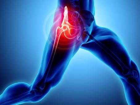 Exercising with hip osteoarthritis - am I doing more damage?