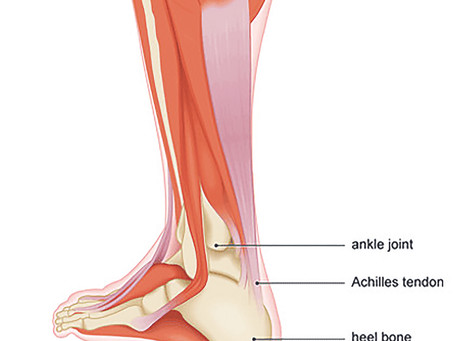 Why am I getting pain in my heel or achilles tendon?
