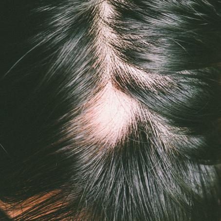 ¿Se te cae el pelo? Dermapen es la solución para estimular y frenar la caída del cabello.