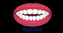 No.8 ortodonti-Stockholm-Öppet bett