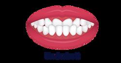 No.8 ortodonti-Stockholm-Underbett