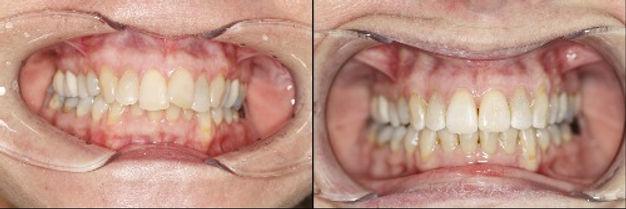 Före och efter bilder av invisalign behandling 10 månader på No.8 ortodonti i Stockholm