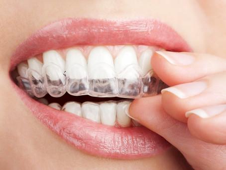 Invisalign – usynlig tannregulering for voksne