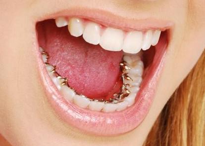 Tannregulering for voksne, hvilke alternativ har du?