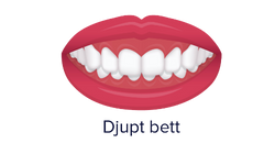 No.8 ortodonti-Stockholm-Djupt bett