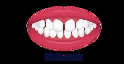 No.8 ortodonti-Stockholm-mallanrum-tänder