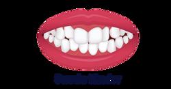No.8 Ortodonti-Stockholm-Sneda tänder