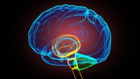 أورن زريفكيف تعرف إذا كنت تعاني من سكتة دماغية أو كنت على وشك اكتساب واحدة؟السكتة الدماغية هي نو