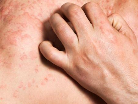 Treatment of skin diseases