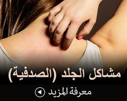 مشاكل الجلد (الصدفية)