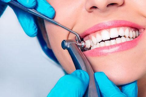 teeth-cleaning-dental-696x462.jpg