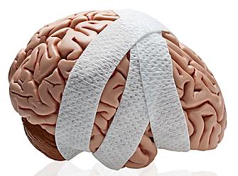2018-04-01-brain-damage-85195.png