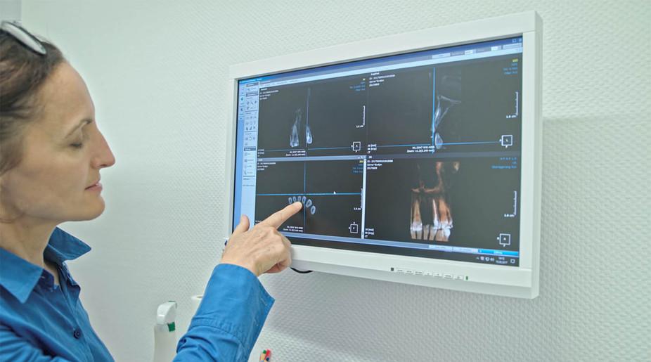 Auswertung 3-D Röntgenbild