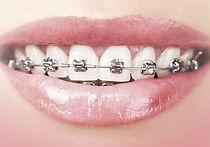 ortodoncija-670x470.jpg