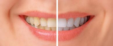 teeth-whitening-close-up-image-female-40