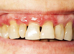 teeth-periodontitis-teeth-periodontitis-