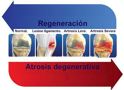 artrosis cambios.jpg
