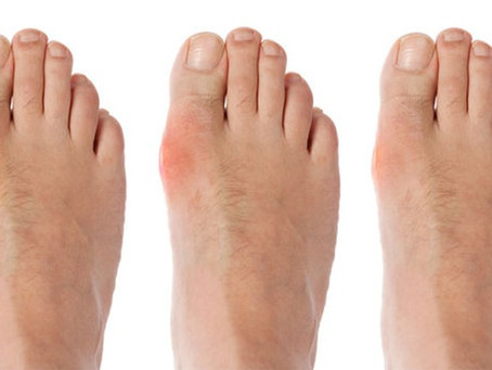 What you should know about Gout
