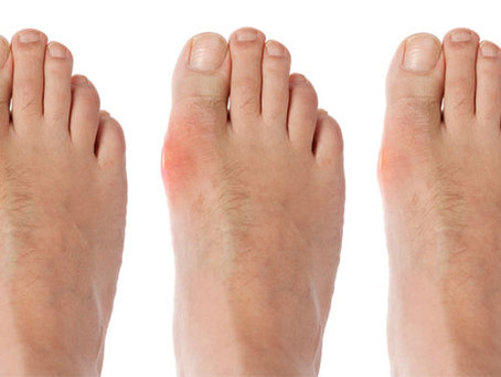 What your Navigator wants you to know about Gout
