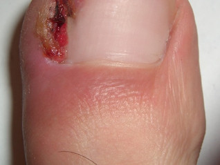 Ingrown toenails and appointments after surgery