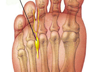 Mortons Neuroma - some useful information for a truly annoying problem!