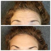 Botox (42 units)
