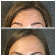 Dysport (90 units equivalent to 30 units of Botox)