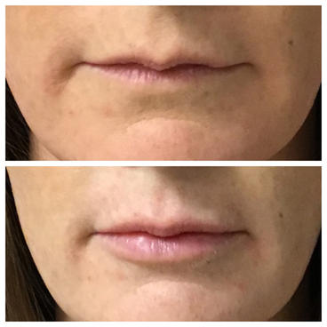 2 syringes of Juvederm Volbella