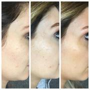 2 IPL/Photofacial Treatments