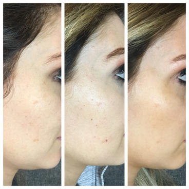 2 IPL/Photofacial Treatments