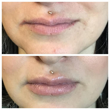 1 syringe of Juvederm Ultra