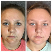 2 HydraFacial and Epionce skincare