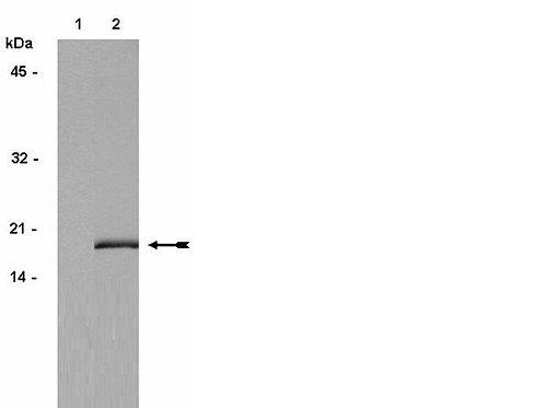 Ref.: 06-570 - ANTI- FOSFO HIST H3 200UG 4C