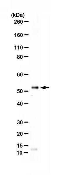 Ref.: 07-1401 - REAG ANTIC GLUT-1  50UG 4C