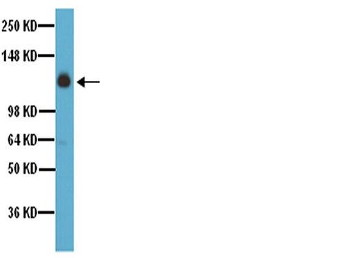 Ref.: AB1928 - REAG INTEGRIN A5 100UL -20C