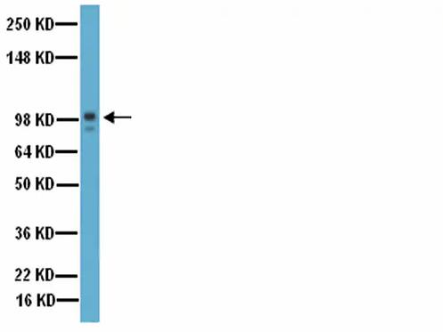 Ref.: AB19016 - ANTI-MMP-9 DOM CATAL 100UG 4C