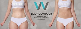 Wonjin Plastic Surgery Body Contouring before and after