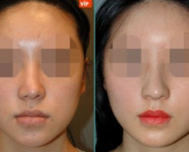 VIP Plastic surgery Korea Before and After