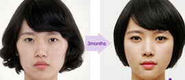 Facial Contouring Grand Plastic surgery www.worldcosmedic.com