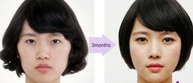 Facial Contouring Grand Plastic surgery www.worldcosmedic.com