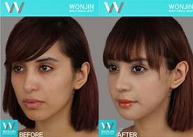 Wonjin Plastic Surgery Facial Contouring