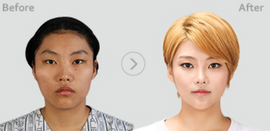 BK Plastic Surgery Korea Seoul