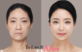 Facial Fat Grafting by The Line Clinic
