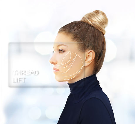 thread lift procedure ,non-surgical facelift,markup.jpg