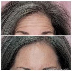 Forehead lines - Xeomin
