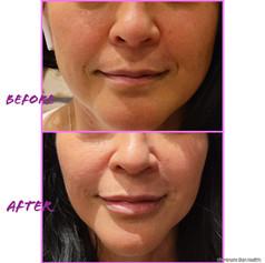 Lips and Nasolabial folds